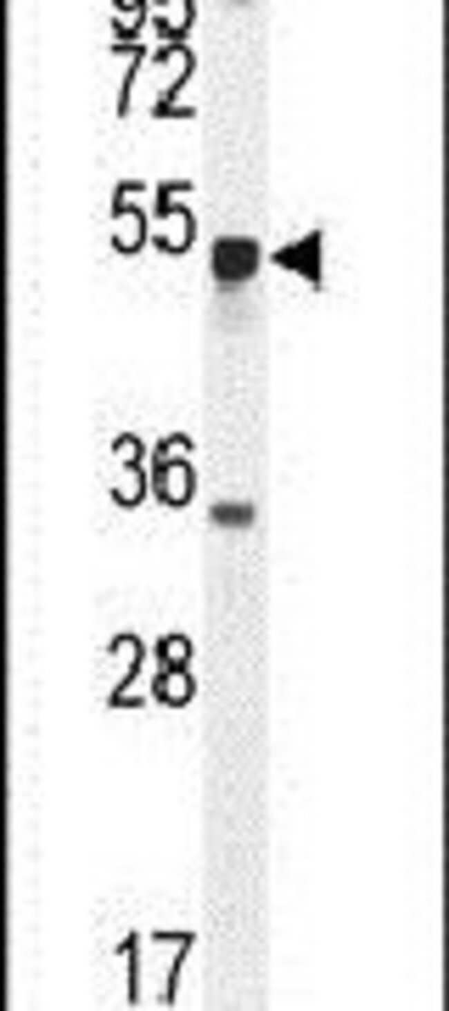 METTL4 Rabbit anti-Human, Mouse, Polyclonal, Invitrogen 200µL; Unconjugated