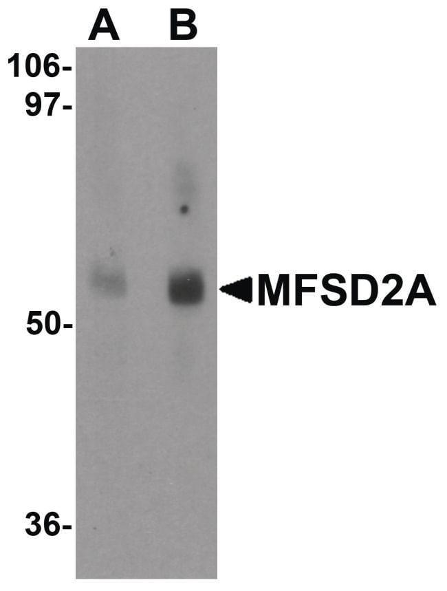 MFSD2A Rabbit anti-Human, Mouse, Rat, Polyclonal, Invitrogen 100 µg;