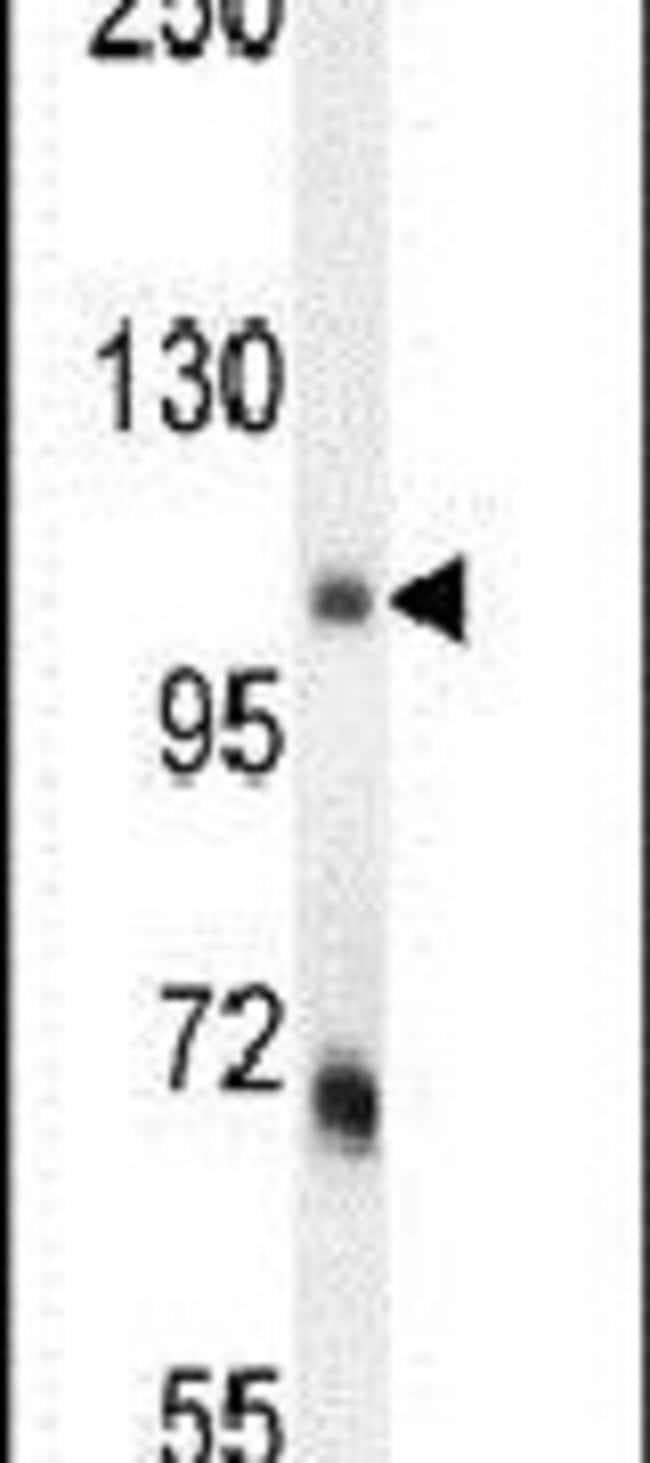 MLXIP Rabbit anti-Human, Mouse, Polyclonal, Invitrogen 400 µL; Unconjugated