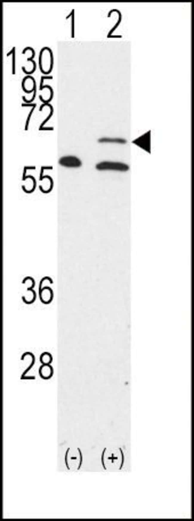MMP14 Rabbit anti-Human, Mouse, Polyclonal, Invitrogen 400 µL; Unconjugated