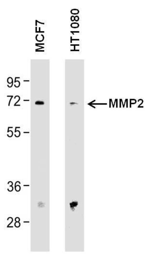 MMP2 Mouse anti-Human, Rat, Clone: F14 P4 D3, Invitrogen 100 μg; Unconjugated:Antibodies
