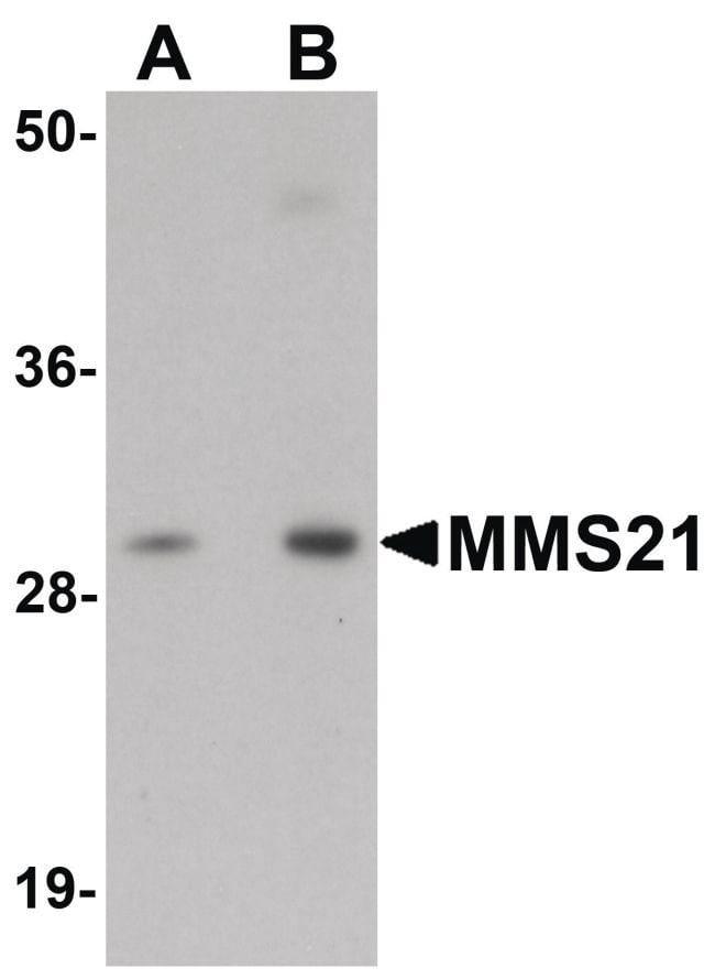 NSE2 Rabbit anti-Human, Mouse, Rat, Polyclonal, Invitrogen 100 µg;