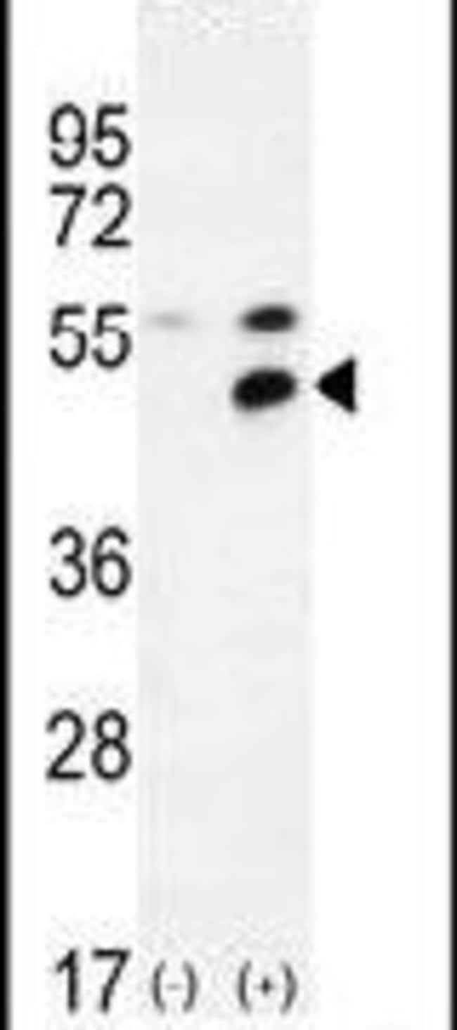 MPP1 Rabbit anti-Human, Polyclonal, Invitrogen 400 µL; Unconjugated