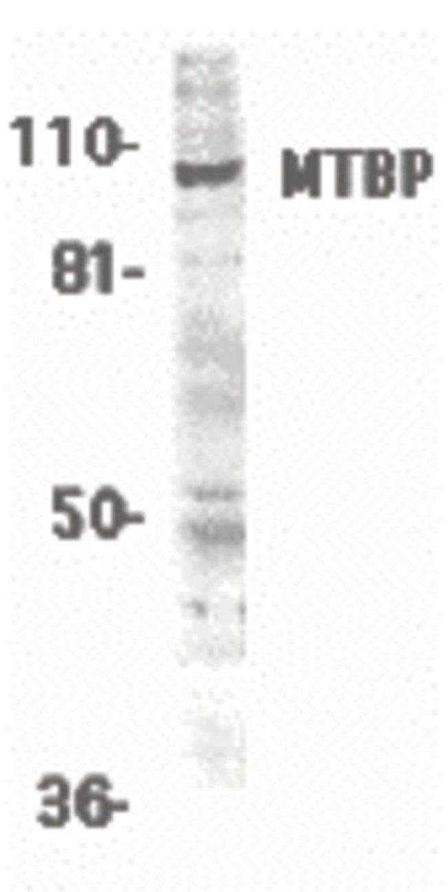MTBP Rabbit anti-Human, Polyclonal, Invitrogen 100 µg; Unconjugated