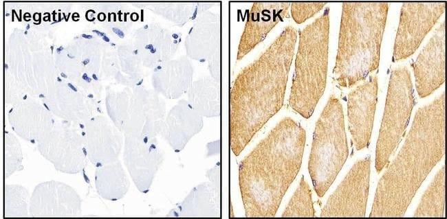 MUSK Rabbit anti-Human, Mouse, Rat, Polyclonal, Invitrogen 200 µg;