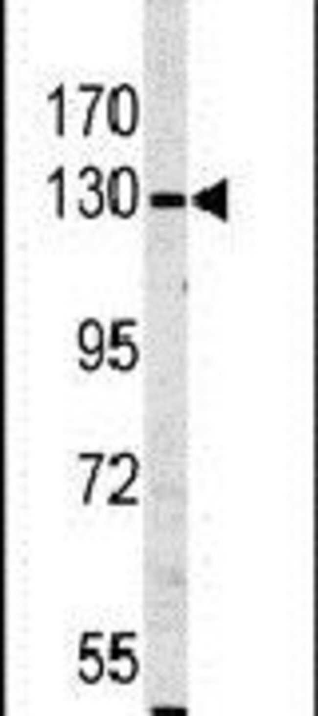 MYO1A Rabbit anti-Human, Polyclonal, Invitrogen 400 µL; Unconjugated