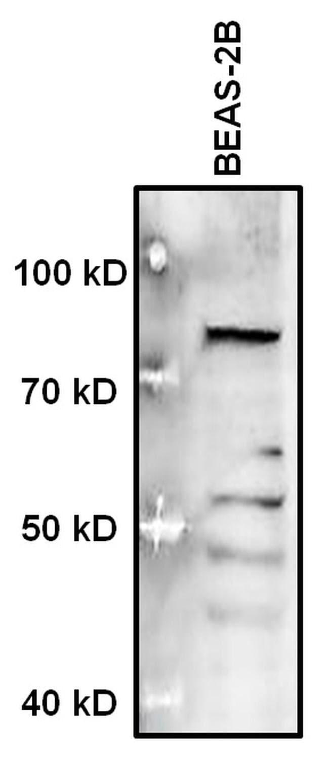 MECP2 Rabbit anti-Human, Mouse, Rat, Polyclonal, Invitrogen 50 µg;