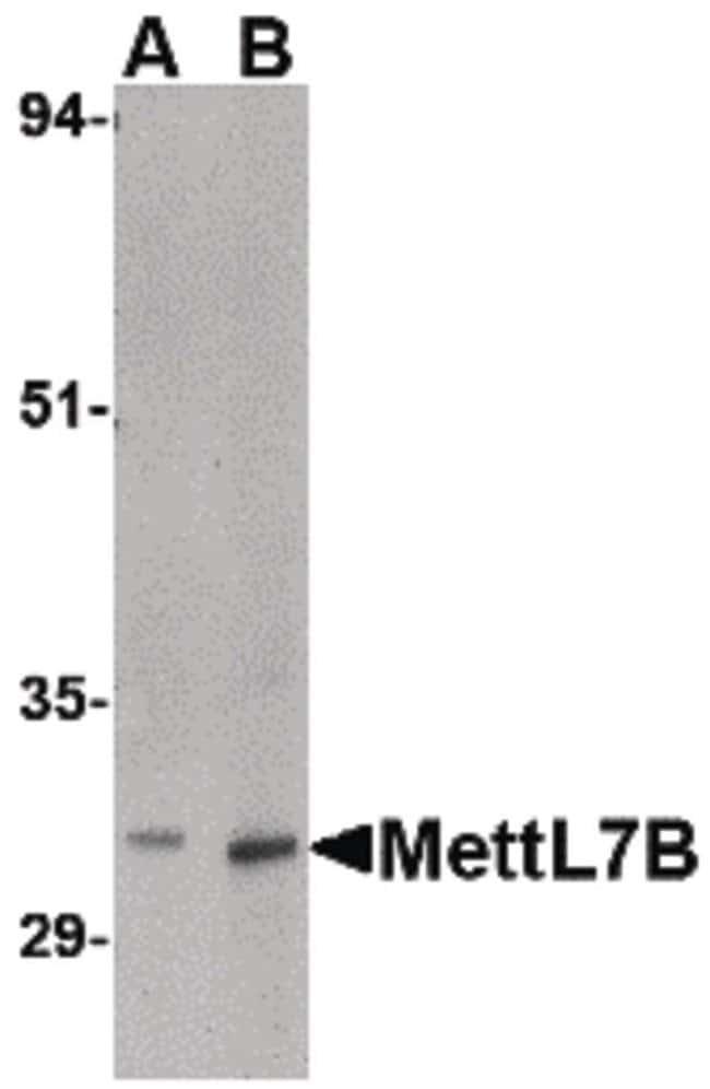 METTL7B Rabbit anti-Human, Mouse, Rat, Polyclonal, Invitrogen 100 µg;