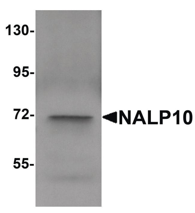 NALP10 Rabbit anti-Human, Polyclonal, Invitrogen 100 µg; Unconjugated