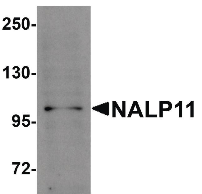NALP11 Rabbit anti-Human, Polyclonal, Invitrogen 100 µg; Unconjugated