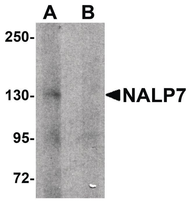 NALP7 Rabbit anti-Human, Polyclonal, Invitrogen 100 µg; Unconjugated