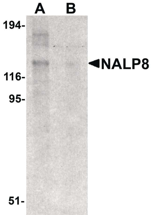 NALP8 Rabbit anti-Human, Polyclonal, Invitrogen 100 µg; Unconjugated