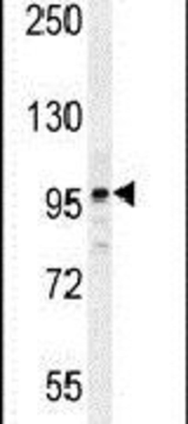 NARG2 Rabbit anti-Human, Mouse, Polyclonal, Invitrogen 400 µL; Unconjugated