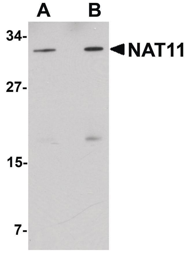 NAT11 Rabbit anti-Human, Mouse, Polyclonal, Invitrogen 100 µg; Unconjugated