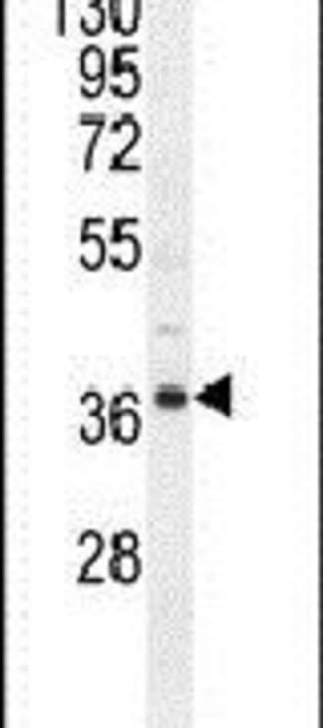 NDUFAF3 Rabbit anti-Human, Mouse, Polyclonal, Invitrogen 400 µL; Unconjugated
