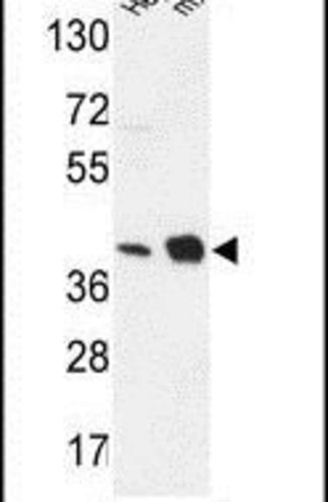 NDUFA10 Rabbit anti-Human, Mouse, Polyclonal, Invitrogen 400 µL; Unconjugated