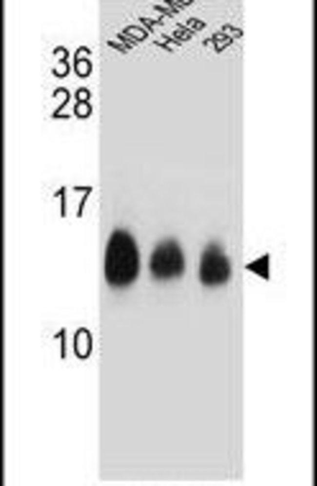 NDUFC2 Rabbit anti-Human, Polyclonal, Invitrogen 400 µL; Unconjugated