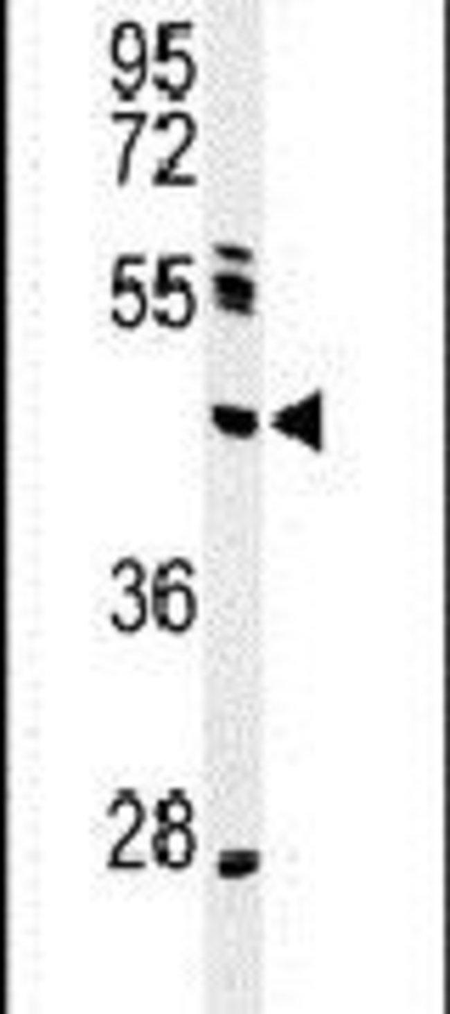 NEIL1 Rabbit anti-Human, Polyclonal, Invitrogen 400 µL; Unconjugated