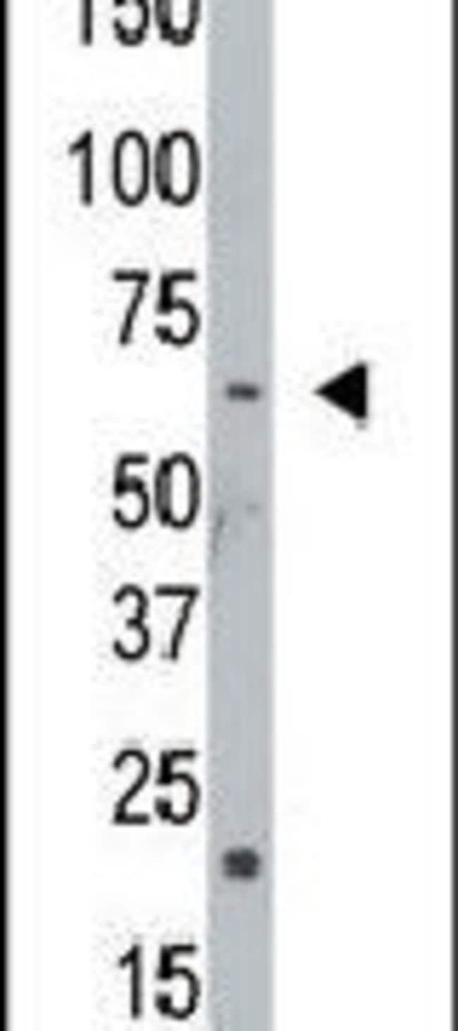 NEK8 Rabbit anti-Human, Polyclonal, Invitrogen 400 µL; Unconjugated