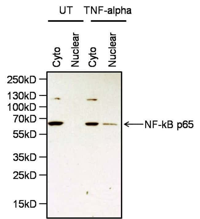 NFkB p65 Rabbit anti-Human, Mouse, Polyclonal, Invitrogen 100 µg;