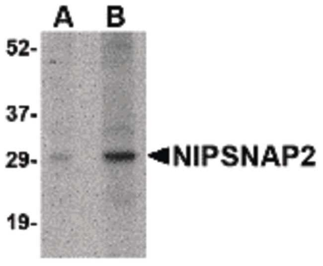GBAS Rabbit anti-Human, Mouse, Rat, Polyclonal, Invitrogen 100 µg;