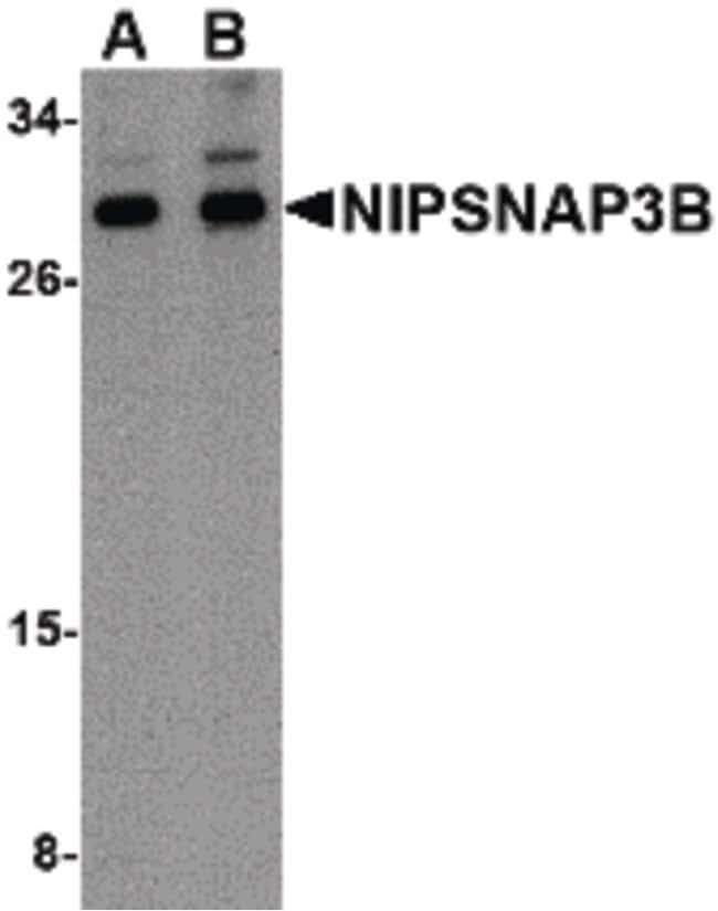 NIPSNAP3B Rabbit anti-Human, Mouse, Polyclonal, Invitrogen 100 µg;