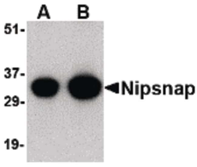 NIPSNAP1 Rabbit anti-Human, Mouse, Rat, Polyclonal, Invitrogen 100 µg;