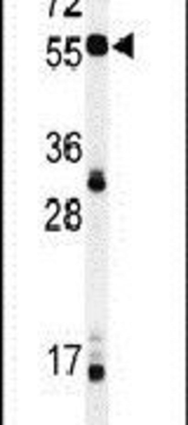 NOB1 Rabbit anti-Human, Polyclonal, Invitrogen 400 µL; Unconjugated