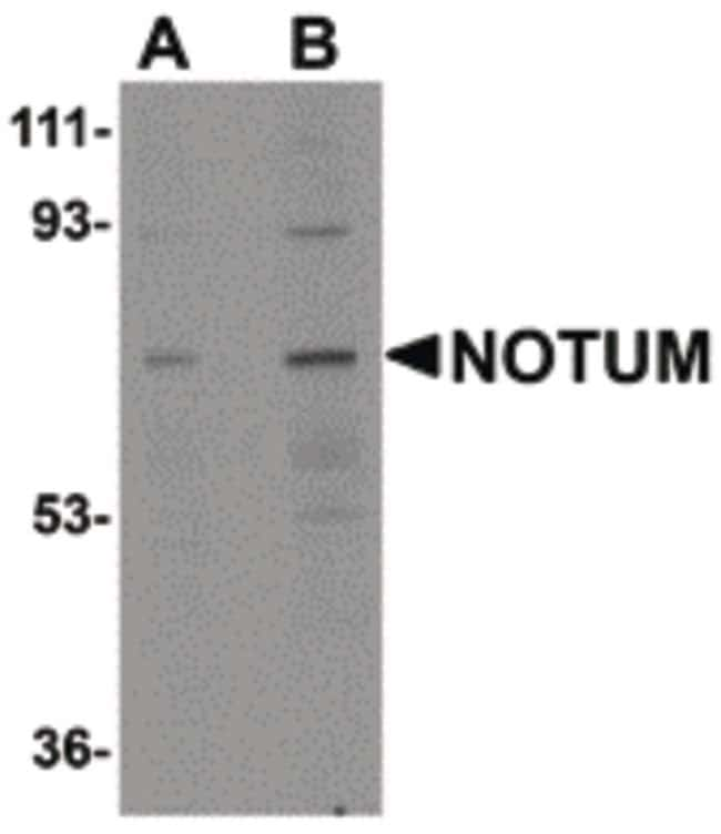 NOTUM Rabbit anti-Human, Mouse, Rat, Polyclonal, Invitrogen 100 µg;