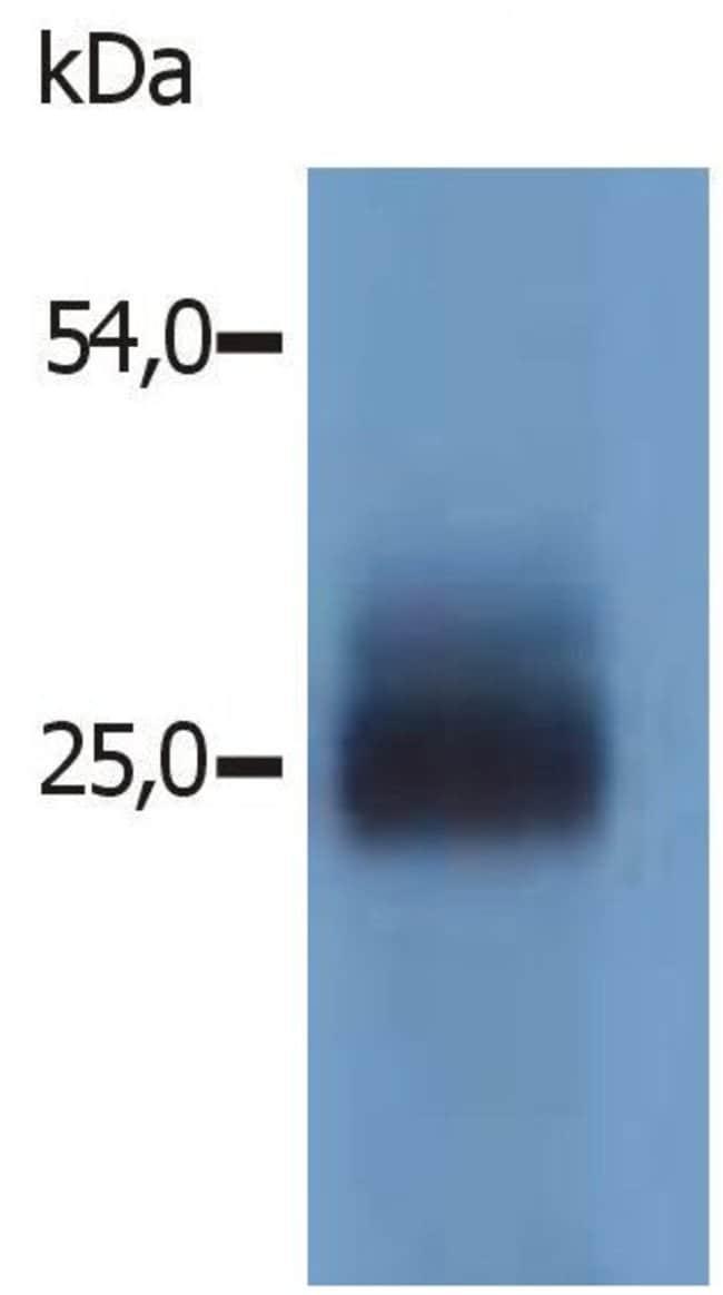 NTAL Rabbit anti-Mouse, Polyclonal, Invitrogen 100 µg; Unconjugated