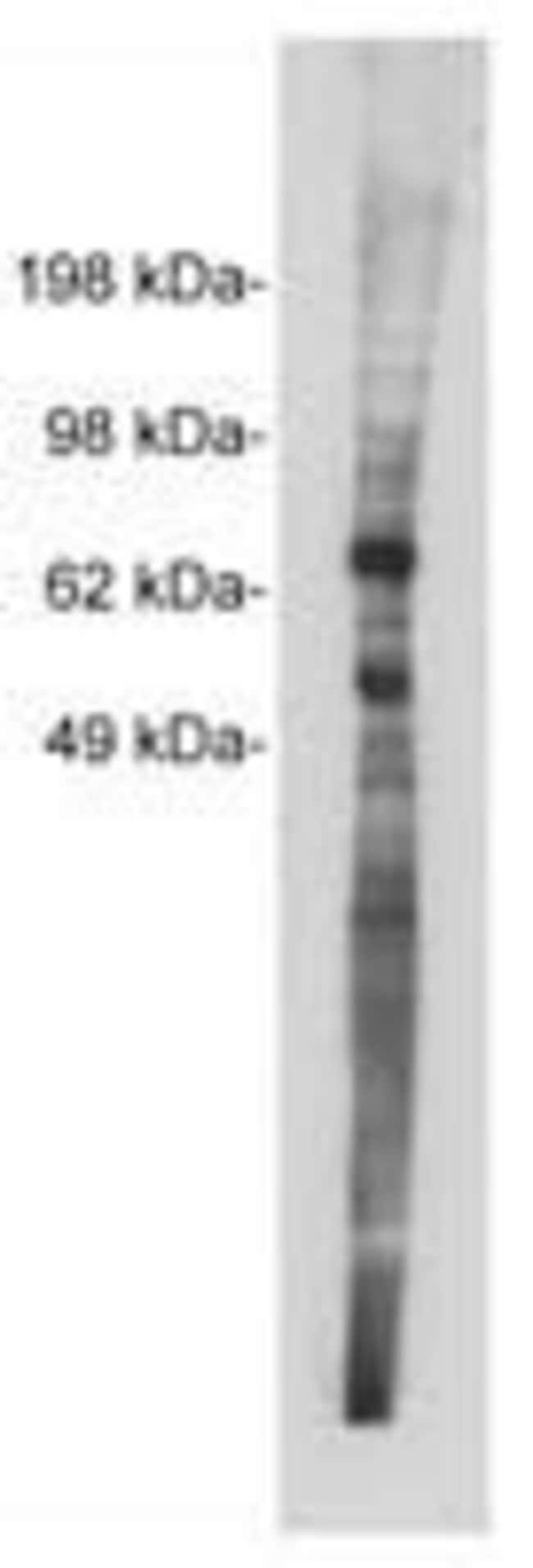 NTN1 Rabbit anti-Bovine, Feline, Human, Mouse, Non-human primate, Rat, Polyclonal, Invitrogen™