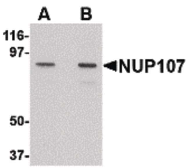 NUP107 Rabbit anti-Human, Rat, Polyclonal, Invitrogen 100 µg; Unconjugated