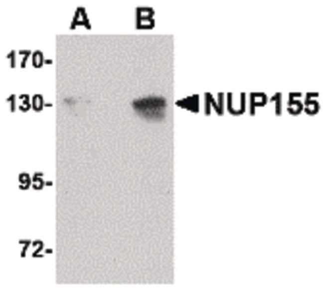 NUP155 Rabbit anti-Human, Mouse, Polyclonal, Invitrogen 100 µg; Unconjugated