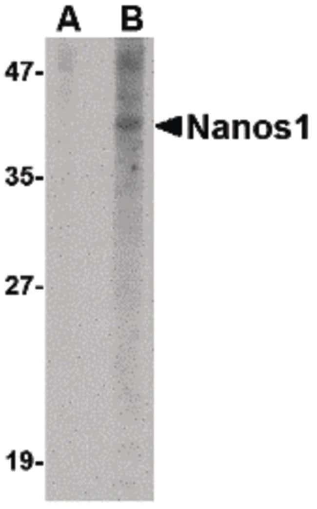 NANOS1 Rabbit anti-Human, Polyclonal, Invitrogen 100 µg; Unconjugated
