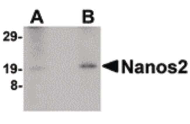 NANOS2 Rabbit anti-Human, Mouse, Rat, Polyclonal, Invitrogen 100 µg;