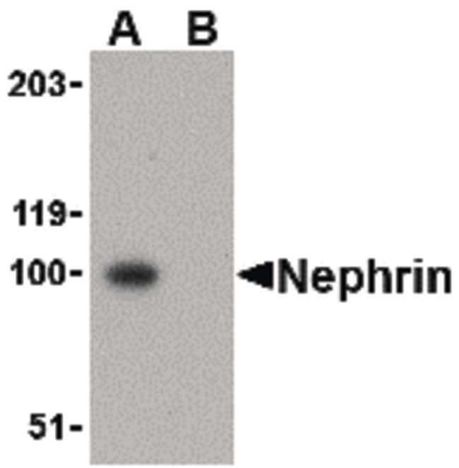 Nephrin Rabbit anti-Human, Mouse, Rat, Polyclonal, Invitrogen 100 µg;