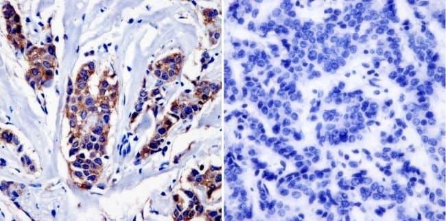 NF1 Mouse anti-Human, Mouse, Rat, Clone: McNFn27b, Invitrogen 200 μg;