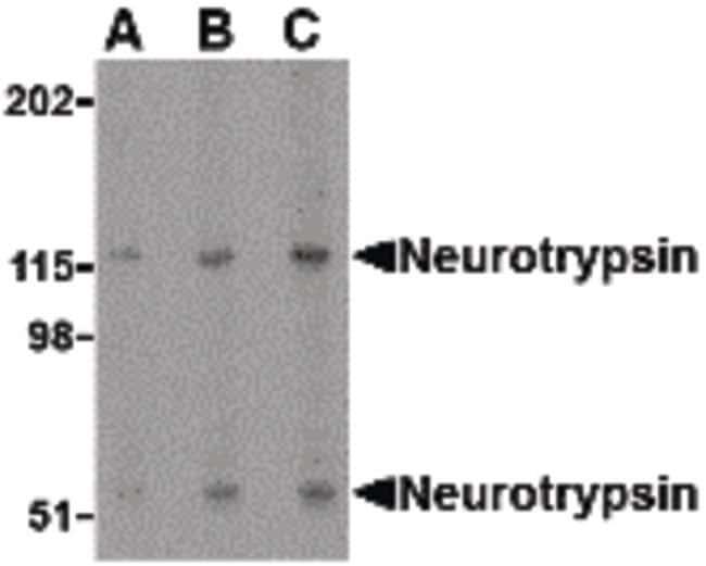 Neurotrypsin Rabbit anti-Human, Mouse, Rat, Polyclonal, Invitrogen 100