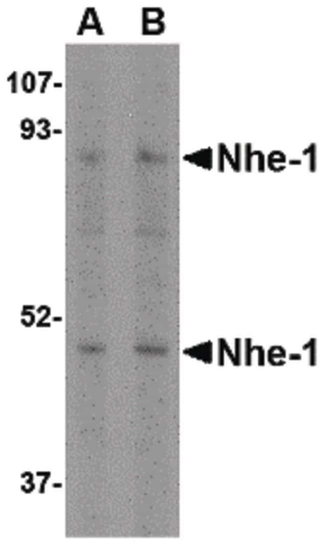 Nhe-1 Rabbit anti-Human, Mouse, Rat, Polyclonal, Invitrogen 100 µg;