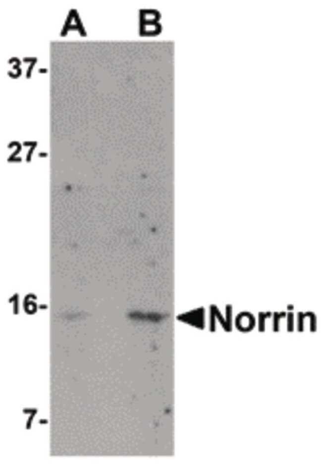 NDP Rabbit anti-Human, Polyclonal, Invitrogen 100 µg; Unconjugated