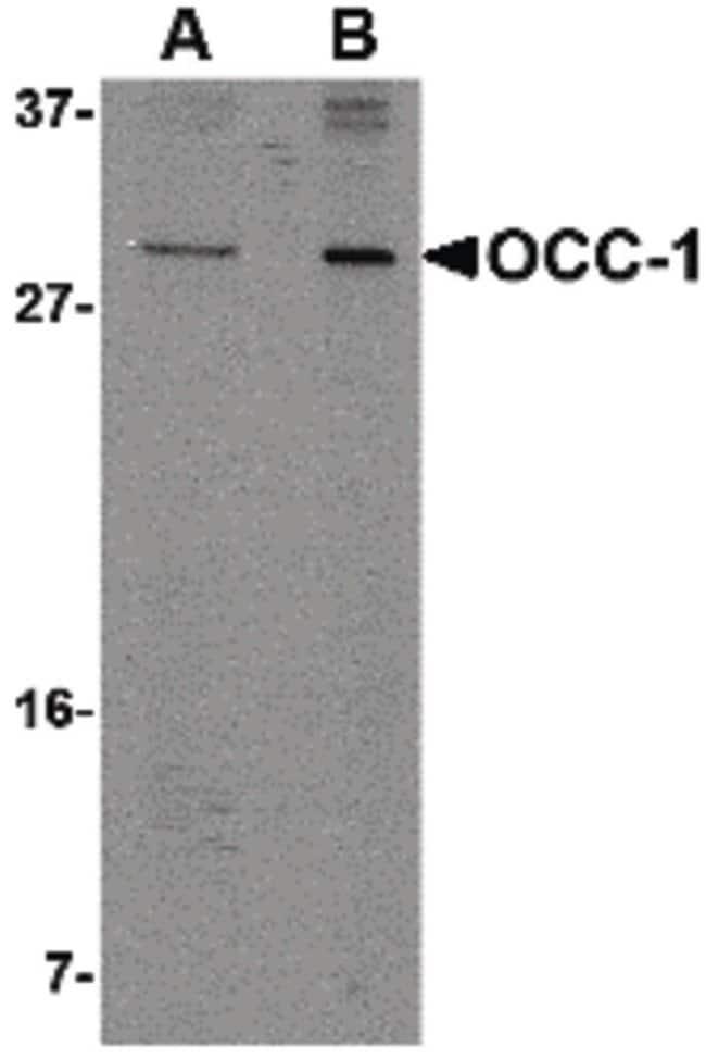 OCC1 Rabbit anti-Human, Polyclonal, Invitrogen 100 µg; Unconjugated