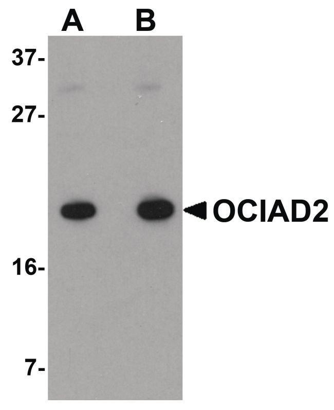 OCIAD2 Rabbit anti-Human, Polyclonal, Invitrogen 100 µg; Unconjugated