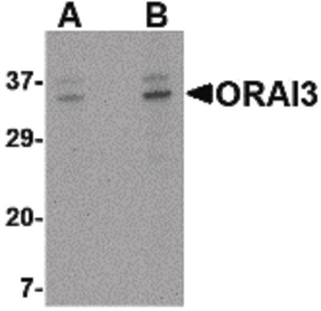 ORAI3 Rabbit anti-Human, Mouse, Polyclonal, Invitrogen 100 µg; Unconjugated