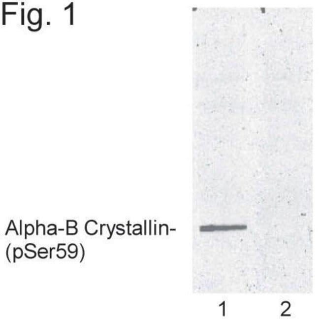 Phospho-CRYAB (Ser59) Rabbit anti-Bovine, Human, Rat, Polyclonal, Invitrogen