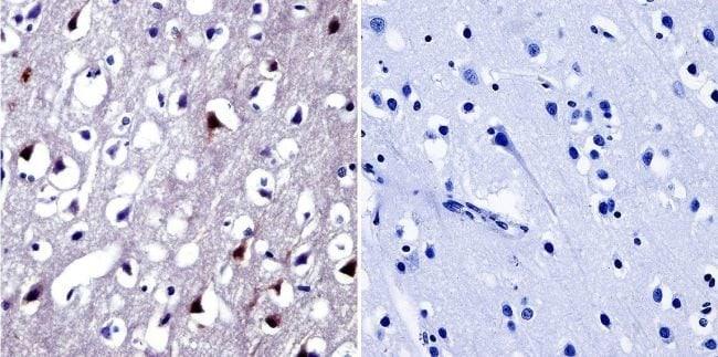 NFAT5 Rabbit anti-Human, Mouse, Polyclonal, Invitrogen 50 µg; Unconjugated