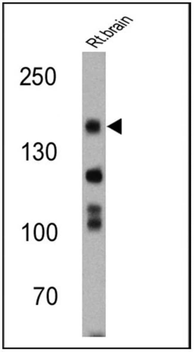 nNOS Rabbit anti-Human, Mouse, Rat, Polyclonal, Invitrogen 100 µg;