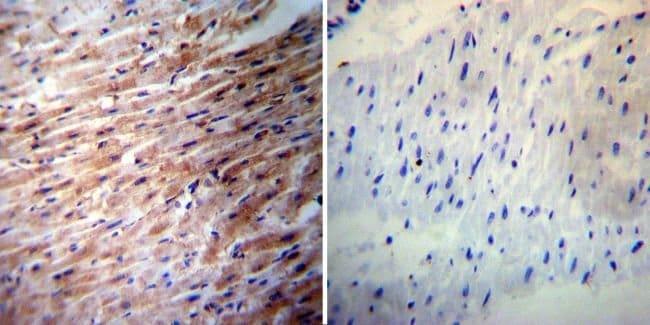 iNOS Rabbit anti-Human, Mouse, Rat, Polyclonal, Invitrogen 200 µL;