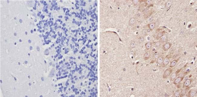 ADORA1 Rabbit anti-Human, Rat, Polyclonal, Invitrogen 100 µL; Unconjugated