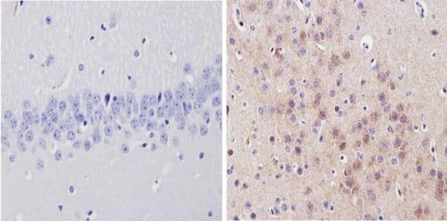 alpha-1a Adrenergic Receptor Rabbit anti-Drosophila, Human, Mouse, Rat,