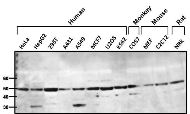 beta-1 Adrenergic Receptor Rabbit anti-Human, Mouse, Non-human primate,